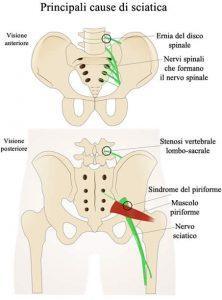 immagine descrittiva delle principali cause della sciatica